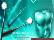 Dental Implants Powerpoint Template